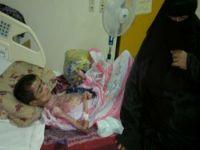 مرض جلدي يحول شاباً سعودياً في مستشفي المجاردة إلى هيكل عظمي يموت ببطء
